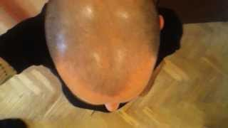 Day 119 Hair Regrowth with Rogaine Minoxidil 5%