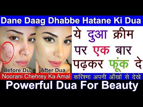 Chehre Ke Dane Daag Dhabbe Khatam Karne Ki Dua   Chehra Chand Jaisa Khubsurat Karne Ki Dua   Shahvez