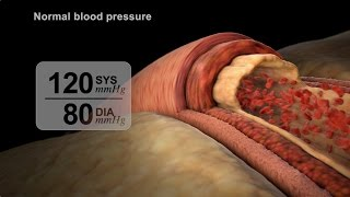 High Blood Pressure Diagnosis | NUCLEUS Medical Media