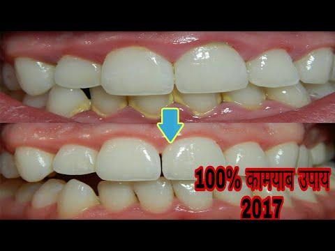 2017 Teeth Experiment