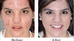 hqdefault - Can Acne Be Cured Permanently