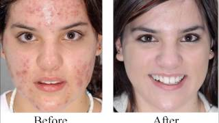 Permanent Solution to Acne - Get Rid of Acne Forever
