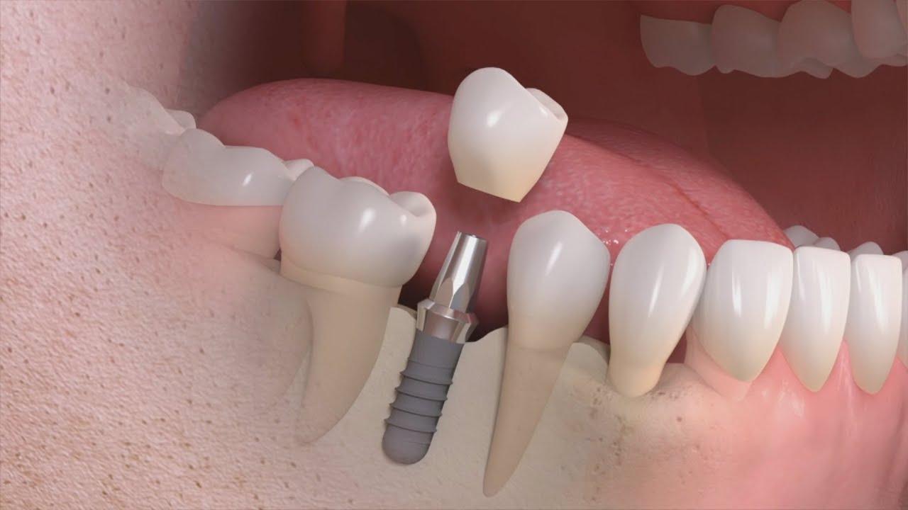 cuantas clases de dientes postizos hay