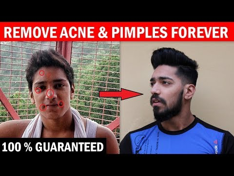 How To Remove ACNE & PIMPLES Forever - 100% Guaranteed | Skincare Tips For Indian Men Hindi
