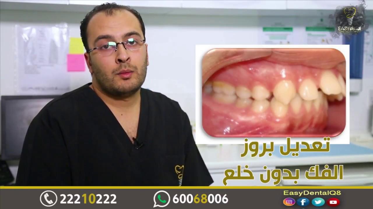 علاج بروز الفكين و تعديل نمو عظام الفكين بإستخدام أجهزة تقويم Youtube