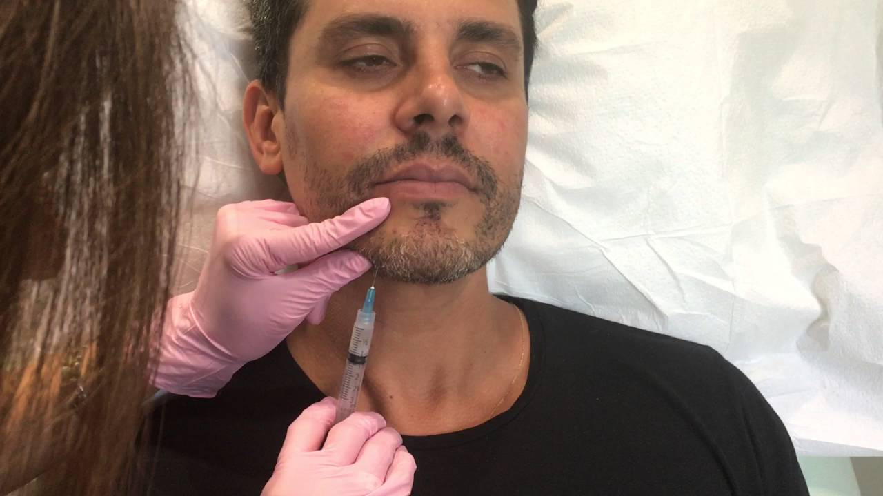 Sculptra Filler for Men (Cheeks, Chin & Jawline)