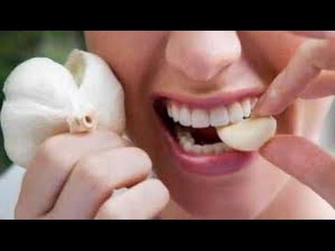 10 Cara Mengobati Sakit Gigi Berlubang Secara Alami - YouTube a2ae79cca6