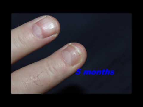 Nailbed Injury & Broken Finger Tip — Bone Talks