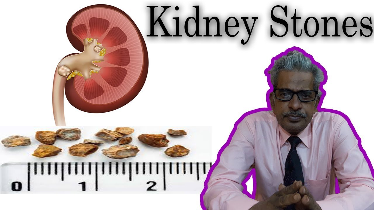 Kidney Stones in Homeopathy by Dr  P S  Tiwari
