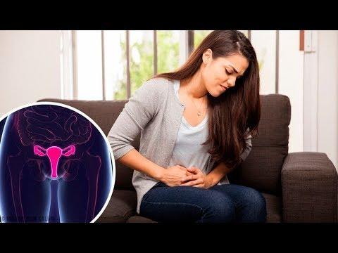 Oorzaken Behandeling En Symptomen Van Menorragie Youtube