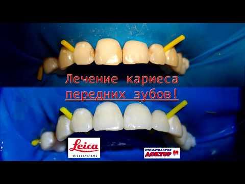 Лечение кариеса передних зубов от первого лица!