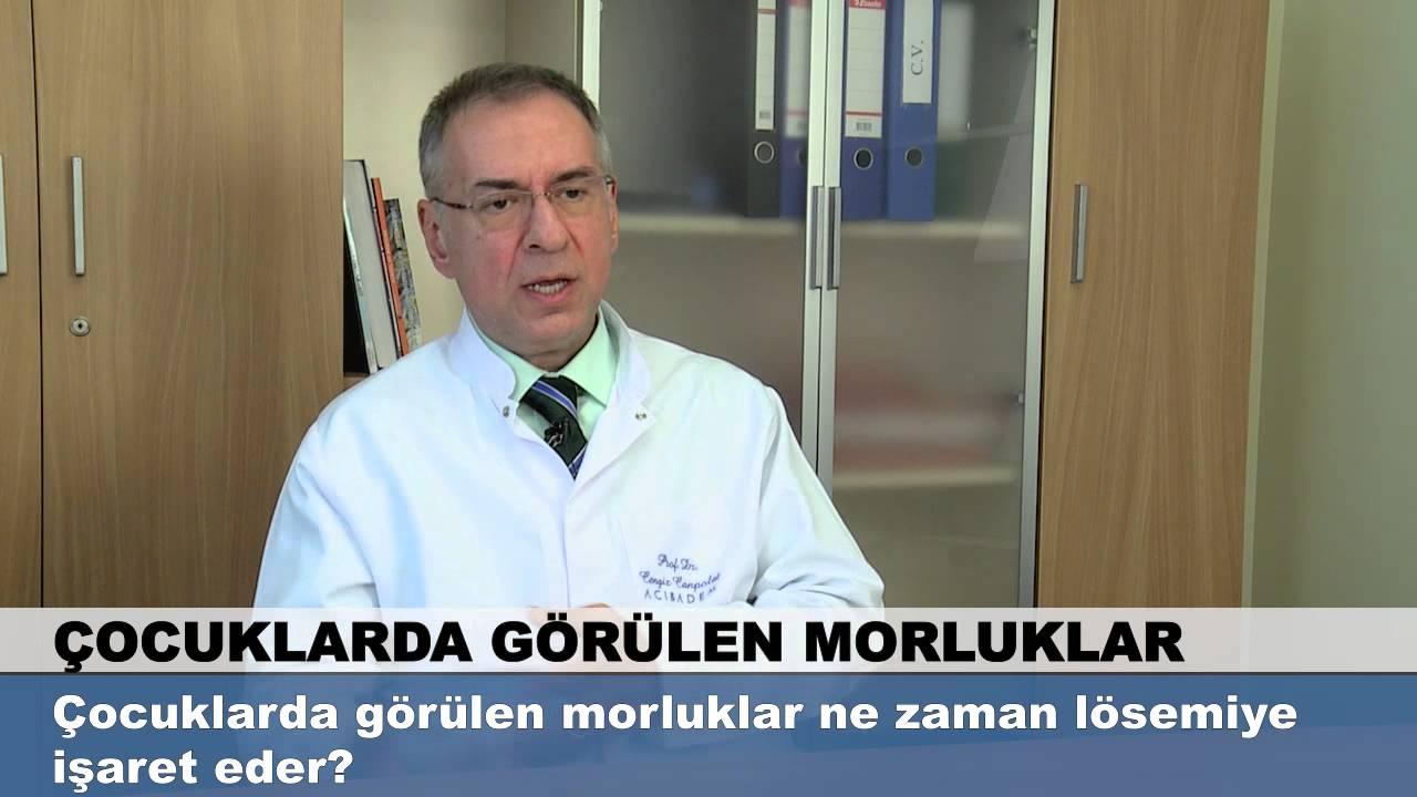 Safra Kesesi Ameliyatı Sonrası Morartı