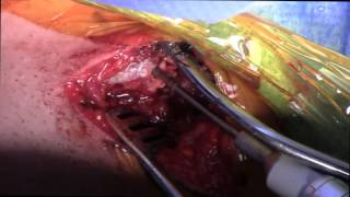 Sternoclavicular Joint Reconstruction