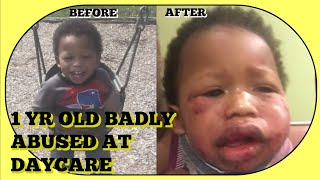 1 YR OLD ABUSED AT DAYCARE