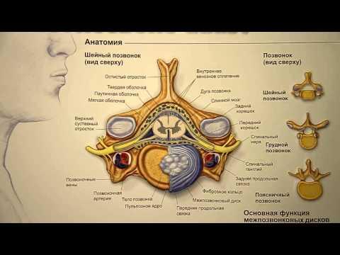 Шейный радикулит: симптомы, причины, лечение