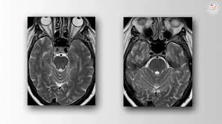 Multiple Offending Vessels in MVD for Trigeminal Neuralgia