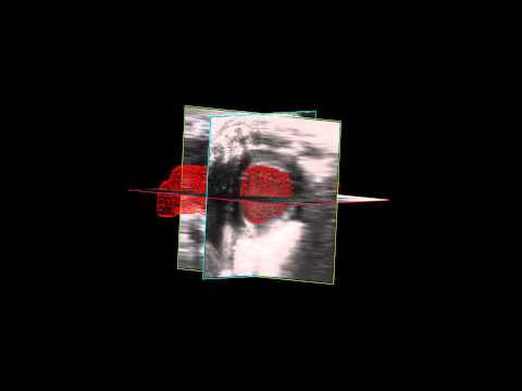 4D Wireframe of The Left Ventricle using the Vevo 3100 Imaging System