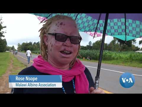 Malawi's Albinos Look to Asylum to Escape Attacks