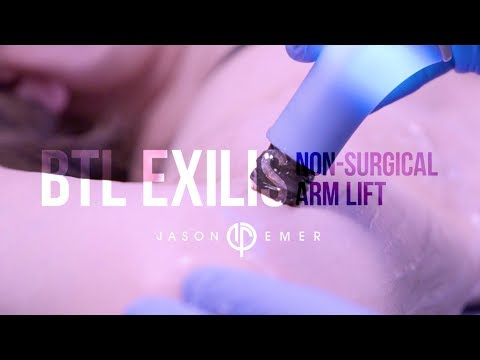 Non-Surgical Skin Tightening | Arm Skin Lift | Dr. Jason Emer | Beverly Hills
