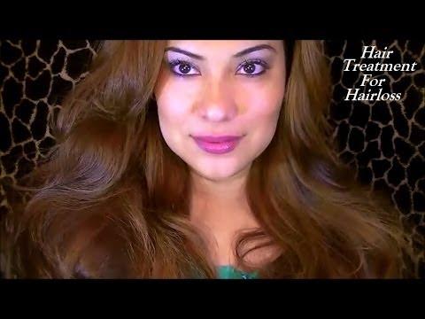 Hair Loss ~ My Story ~ Treatment  YouTube