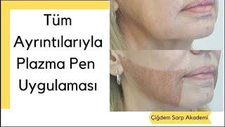 Plazma Pen Uygulaması Nedir ve Nasıl Yapılır?