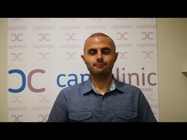 Real experience after the Hair transplant - Capilclinic Dr Oguz KAYIRAN