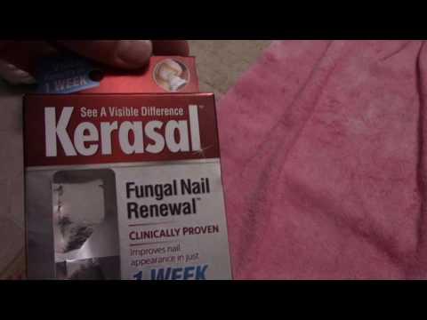 Toe Nail Fungus, How to Use Kerasal