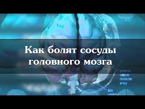 Сильная слабость во всем теле, головная боль и