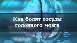 Як болять судини головного мозку