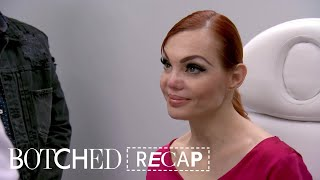 Mexican Model Needs Nose Job After Tragedy | Botched (S5 E13) | E!