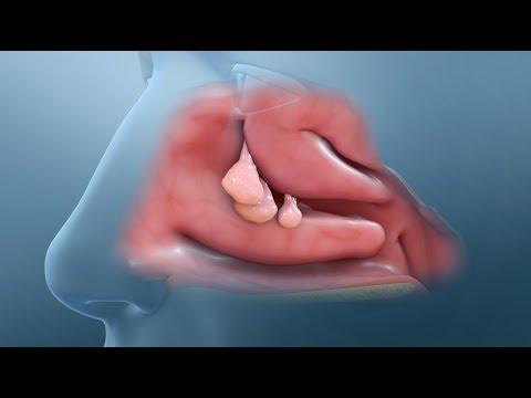 Nasal Polyp Removal Surgery