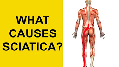 Sciatica Causes, Symptoms, and Treatment - Herniated Disc, Spinal Stenosis, Piriformis Syndrome