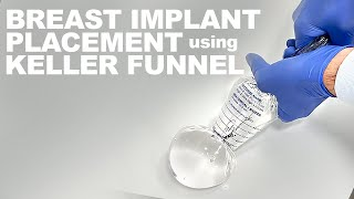 Breast Implant Placement using the Keller Funnel - Dr. Paul Ruff | West End Plastic Surgery
