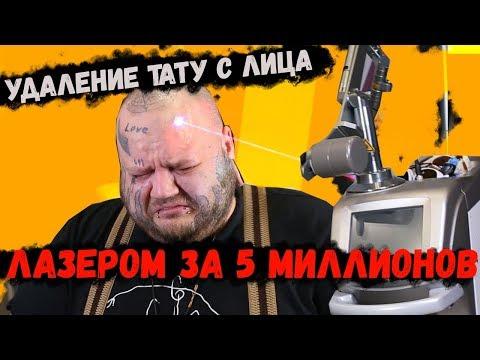 УДАЛЯЮ ТАТУ с ЛИЦА ЛАЗЕРОМ за 5 МИЛЛИОНОВ рублей