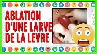 ablation ( extraction ) d'une larve de la lèvre