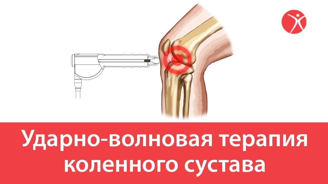 Ударно-волновая терапия коленного сустава
