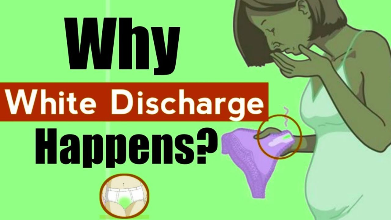 Why Do I Have So Much Discharge | Why White discharge Happens,  #Alwaysbrightside, #Brightside