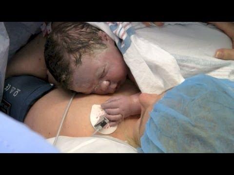 Skin-to-skin C-section promotes health, bonding