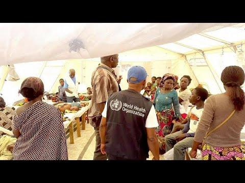 cholera sécheresse buccale