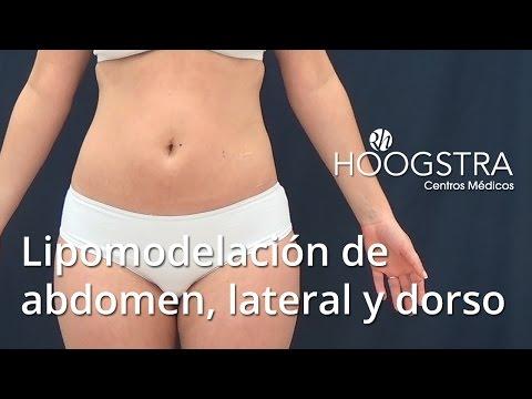 Lipomodelación de abdomen, contorno lateral y dorso (15160)