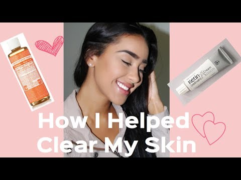 HOW I GOT RID OF MY (CYSTIC) ACNE | TIPS | REVIEW Dr. Bronners