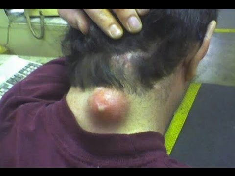 Biggest Lump Ive Ever Seen On A Neck But What Should He Do
