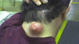 BIGGEST ZIT ON PLANET EARTH!!! (warning! MOST disgusting version!) #316