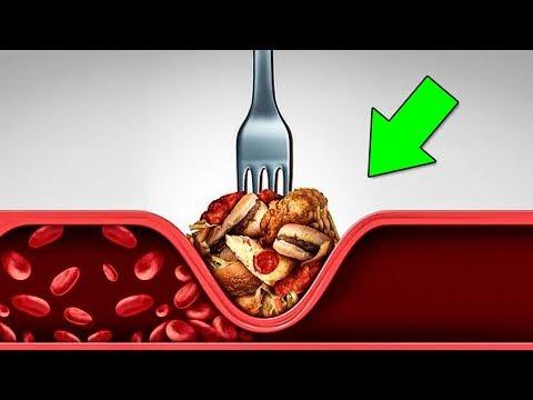 Как Снизить Холестерин и очистить Сосуды без таблеток