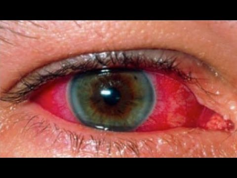 Uveitis Treatment Naturally