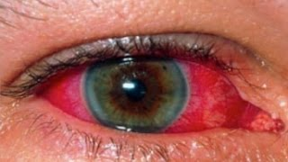 Uveitis, describes inflammatory diseases, that produces swelling, and affects the middle layer of th.