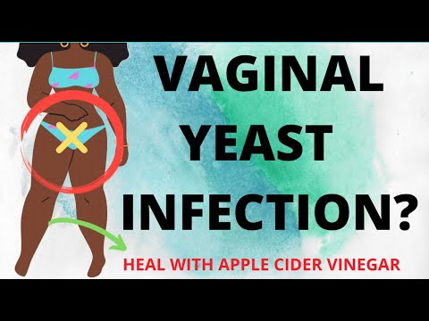 heal-vaginal-yeast-infection-at-home-with-apple-cider-vinegar/no-vaginal-discharge-/health-tips