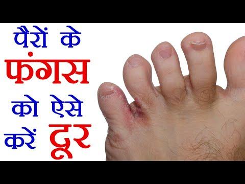 Foot Fungus  – Remedies: बरसात के पानी से हो गया है पैरों में फंगस तो ऐसे करें दूर | Boldsky