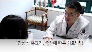 갑상선 혹 크기, 증상에 따른 치료방법