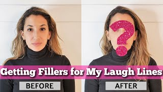 Getting Fillers for My Laugh Lines (Nasolabial Folds) with Dr. Andrea Herschorn - BEFORE & AFTER